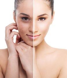 Косметология в Клинике Красоты со скидкой до 63%! Процедуры для ухода и сияния Вашей кожи!